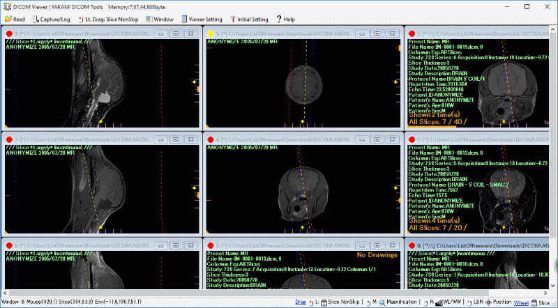 Dicom Viewer for Windows 10 free download on 10 App Store